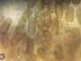 Sphaeropsis visci