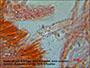 Odonticium septocystidia